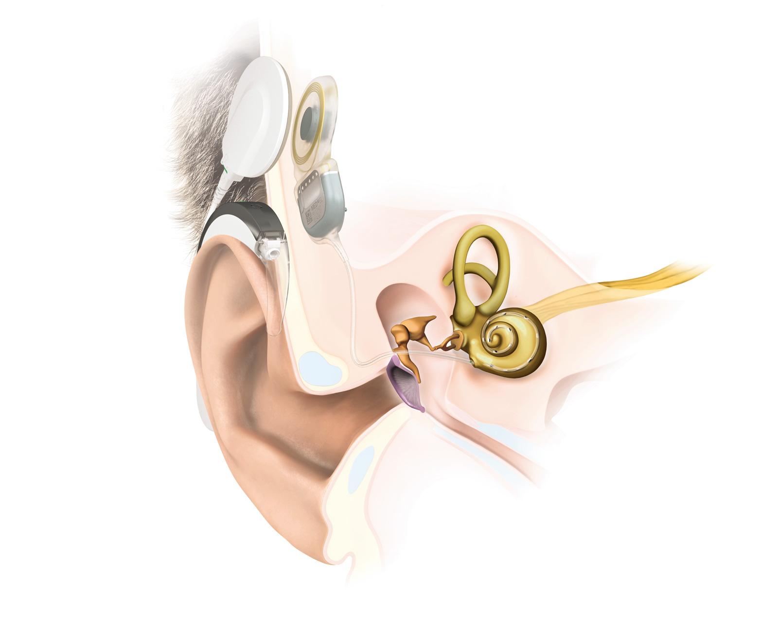 Cochlea-Implantat-System am und im Ohr