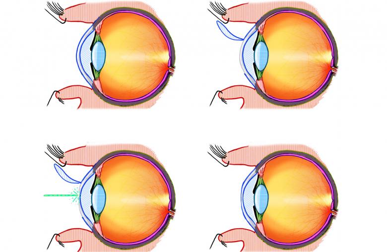 Bei der LASIK-Methode schneidet ein Laser eine dünne Lamelle in das betäubte Auge. Ein weiterer Laser korrigiert die darunter liegende Hornhautfläche, bevor die Lamelle wieder zurückgeklappt wird.