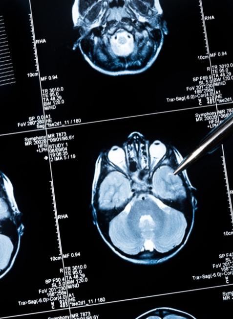 Durch Eiweißklumpen im Gehirn werden die Nervenzellen geschädigt. Mit etwas Sport, Denkaktivitäten, guter Ernährung und einem guten sozialen Netz lässt sich dem entgegenwirken.